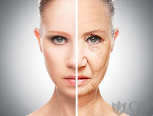 Liftingovy-efekt-omlazení-oblyčeje-CBP-klinika-estetické-a-plastické-chirurgie.