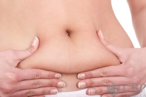 Liposukce-břicha-CBP-klinika-estetické-a-plastické-chirurgie