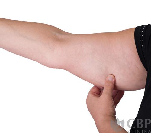 Liposukce-valů-paží-CBP-klinika-estetické-a-plastické-chirurgie