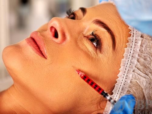 Vyhlazení vrásek CBP klinika estetické a plastické chirurgie